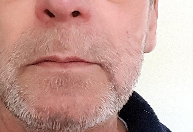Mein Bart Hat Jubilaum Blogbimmel